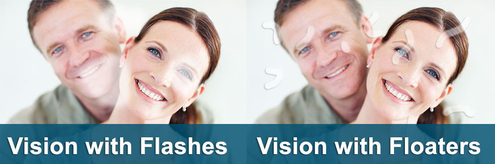 Flashes And Floaters The Yaldo Eye Center Michigan