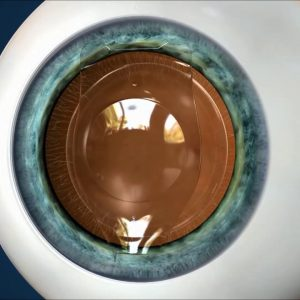 Clear Lens Implants, an alternative to Lasik