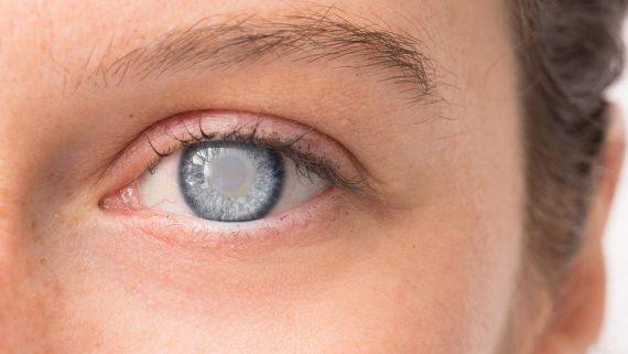 Cataract image