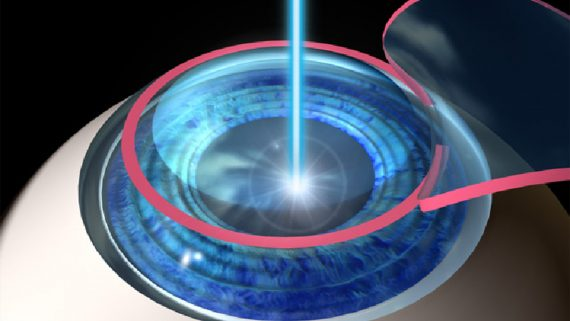 Is Lasik Painful? No Its not!