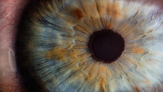 Lasik Eye Surgery Michigan Reviews